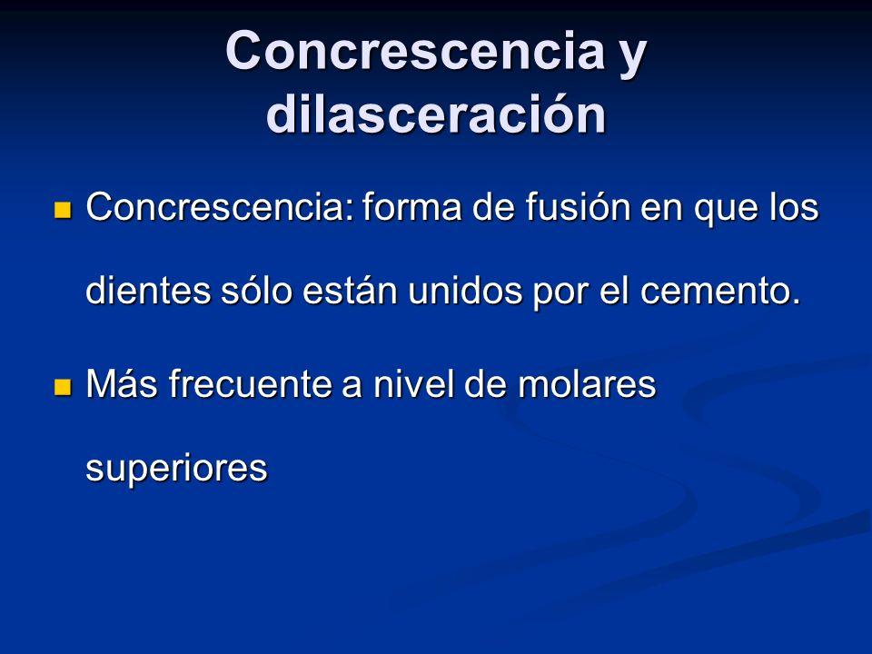 Concrescencia y dilasceración Concrescencia: forma de fusión en que los dientes sólo están unidos por el cemento. Concrescencia: forma de fusión en qu