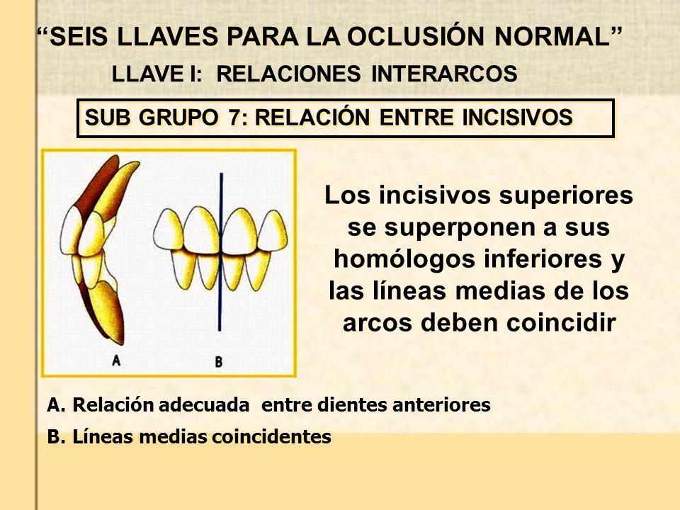 LLAVE I: RELACIONES INTERARCOS Los incisivos superiores se superponen a sus homólogos inferiores y las líneas medias de los arcos deben coincidir SUB GRUPO 7: RELACIÓN ENTRE INCISIVOS SEIS LLAVES PARA LA OCLUSIÓN NORMAL A.Relación adecuada entre dientes anteriores B.Líneas medias coincidentes