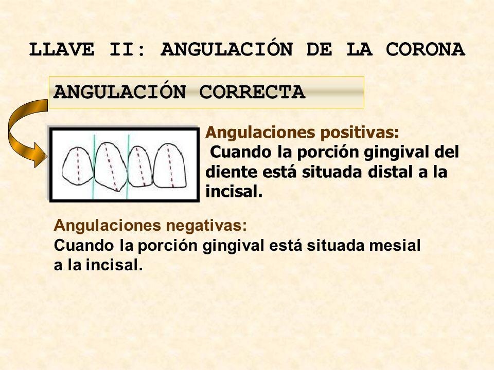 LLAVE II: ANGULACIÓN DE LA CORONA Angulaciones positivas: Cuando la porción gingival del diente está situada distal a la incisal.