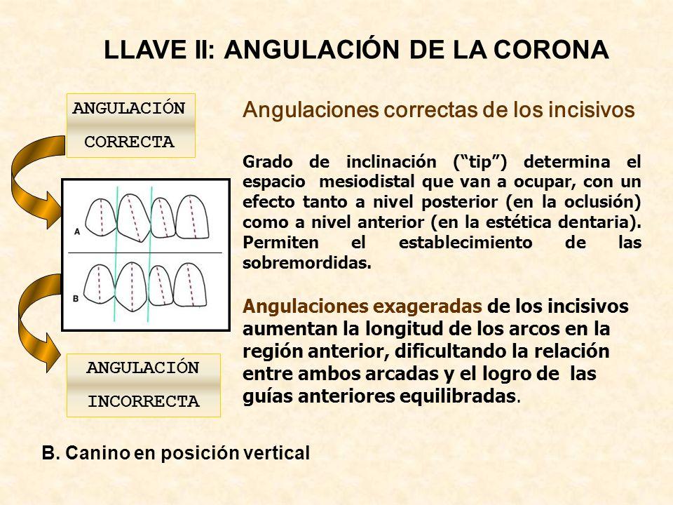LLAVE II: ANGULACIÓN DE LA CORONA ANGULACIÓN INCORRECTA Angulaciones correctas de los incisivos Grado de inclinación (tip) determina el espacio mesiodistal que van a ocupar, con un efecto tanto a nivel posterior (en la oclusión) como a nivel anterior (en la estética dentaria).