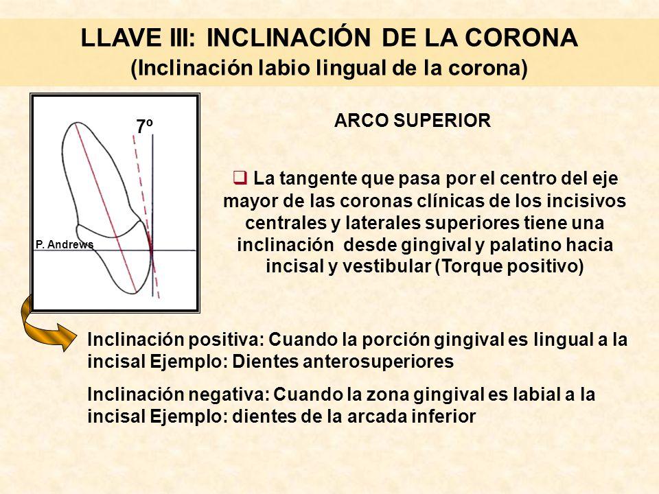 LLAVE III: INCLINACIÓN DE LA CORONA (Inclinación labio lingual de la corona) La tangente que pasa por el centro del eje mayor de las coronas clínicas de los incisivos centrales y laterales superiores tiene una inclinación desde gingival y palatino hacia incisal y vestibular (Torque positivo) ARCO SUPERIOR Inclinación positiva: Cuando la porción gingival es lingual a la incisal Ejemplo: Dientes anterosuperiores Inclinación negativa: Cuando la zona gingival es labial a la incisal Ejemplo: dientes de la arcada inferior 7º P.