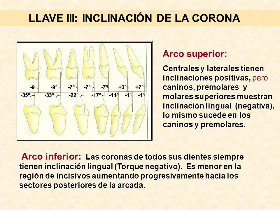 LLAVE III: INCLINACIÓN DE LA CORONA Arco inferior: Las coronas de todos sus dientes siempre tienen inclinación lingual (Torque negativo).