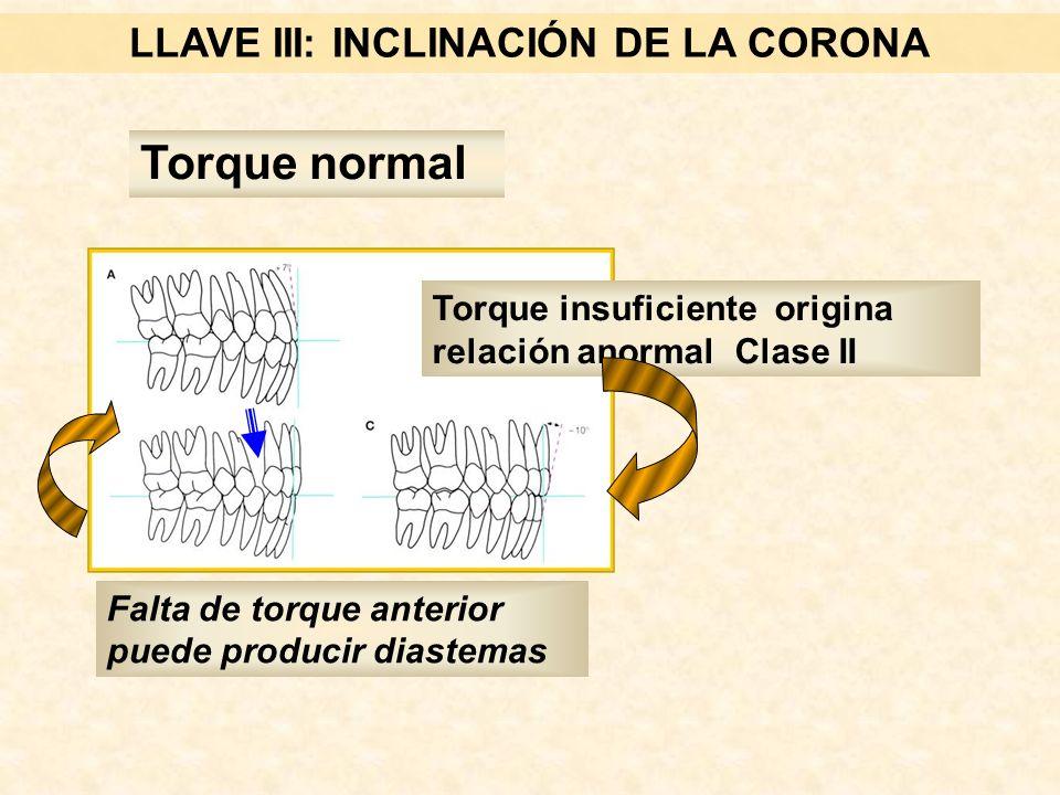 LLAVE III: INCLINACIÓN DE LA CORONA Torque normal Falta de torque anterior puede producir diastemas Torque insuficiente origina relación anormal Clase II
