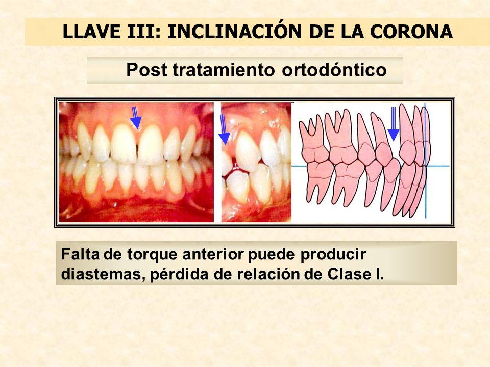 LLAVE III: INCLINACIÓN DE LA CORONA Falta de torque anterior puede producir diastemas, pérdida de relación de Clase I.