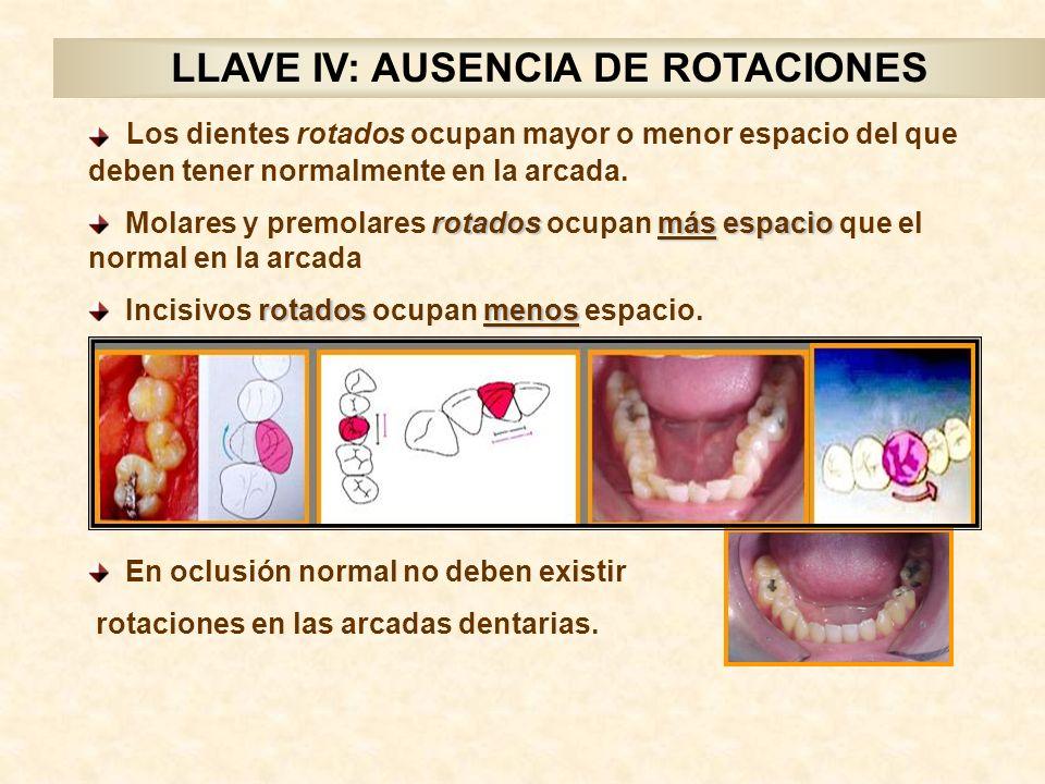 LLAVE IV: AUSENCIA DE ROTACIONES Los dientes rotados ocupan mayor o menor espacio del que deben tener normalmente en la arcada.