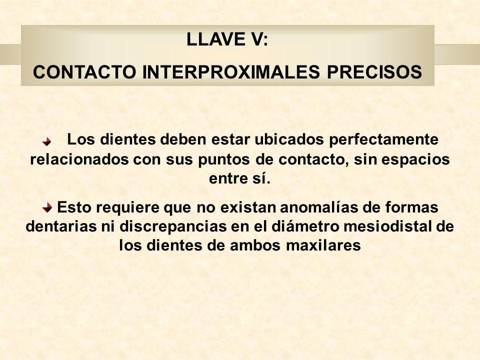 LLAVE V: CONTACTO INTERPROXIMALES PRECISOS Los dientes deben estar ubicados perfectamente relacionados con sus puntos de contacto, sin espacios entre sí.