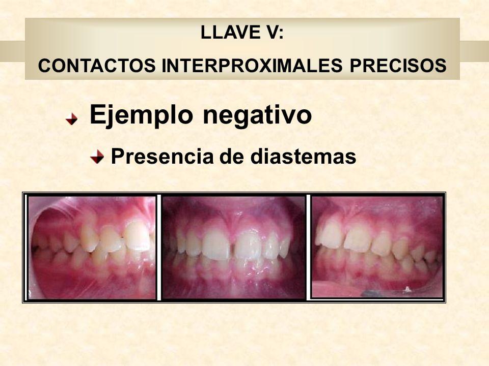 Ejemplo negativo Presencia de diastemas LLAVE V: CONTACTOS INTERPROXIMALES PRECISOS
