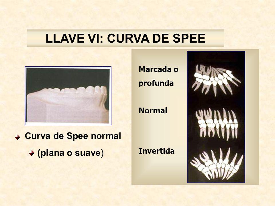 LLAVE VI: CURVA DE SPEE Curva de Spee normal (plana o suave) Marcada o profunda Normal Invertida
