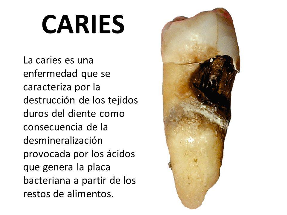 CARIES La caries es una enfermedad que se caracteriza por la destrucción de los tejidos duros del diente como consecuencia de la desmineralización pro