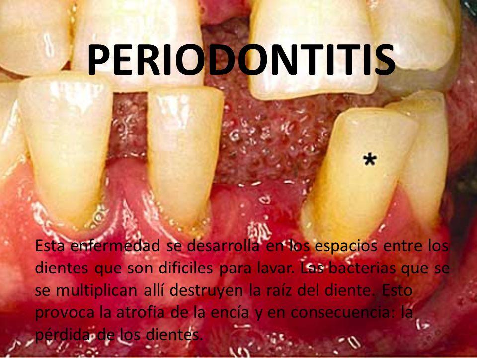 PERIODONTITIS Esta enfermedad se desarrolla en los espacios entre los dientes que son dificiles para lavar. Las bacterias que se se multiplican allí d