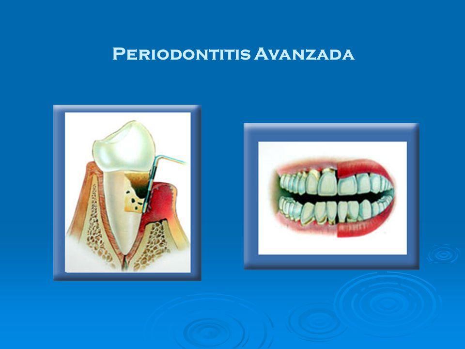 Periodontitis Avanzada