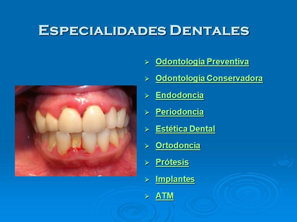 Especialidades Dentales Odontología Preventiva Odontología Preventiva Odontología Preventiva Odontología Preventiva Odontología Conservadora Odontolog