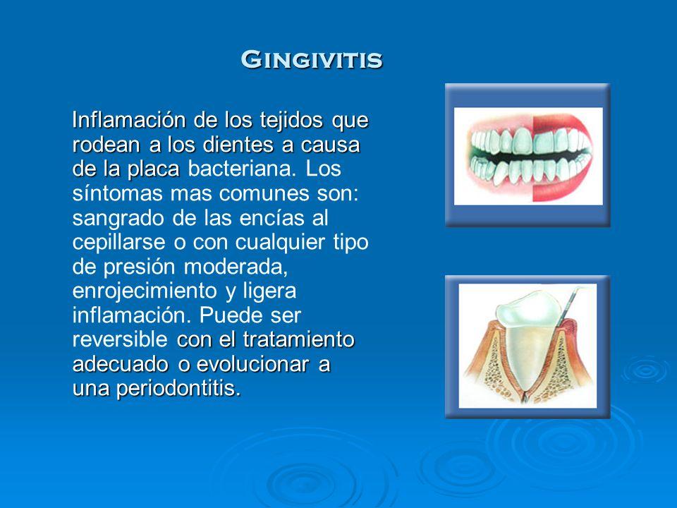 Inflamación de los tejidos que rodean a los dientes a causa de la placa con el tratamiento adecuado o evolucionar a una periodontitis. Inflamación de