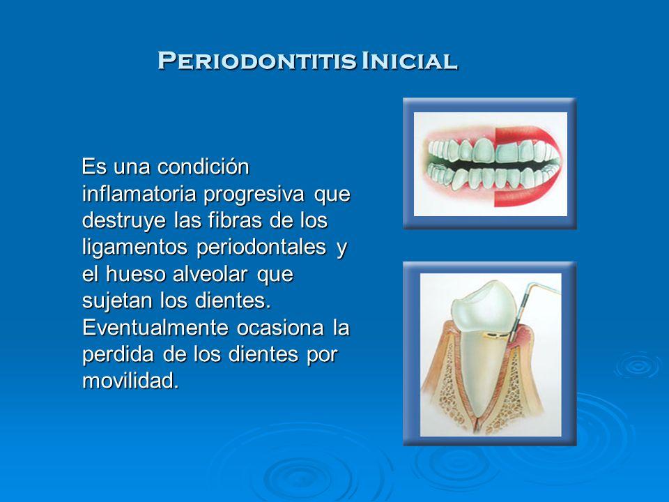 Es una condición inflamatoria progresiva que destruye las fibras de los ligamentos periodontales y el hueso alveolar que sujetan los dientes. Eventual