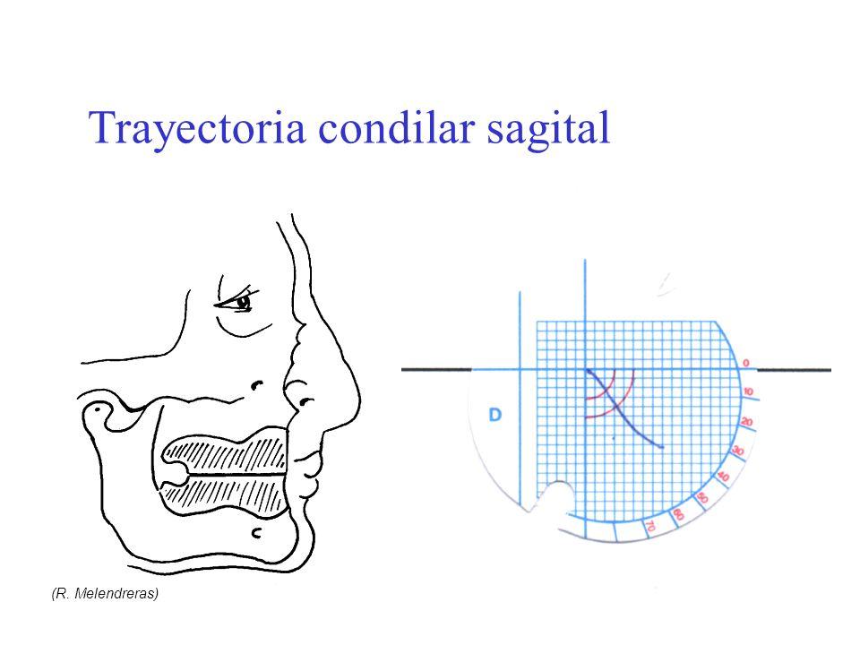 Guía y trayectoria condilar y fenómeno de Christensen (R. Melendreras) Trayectoria condilar sagital