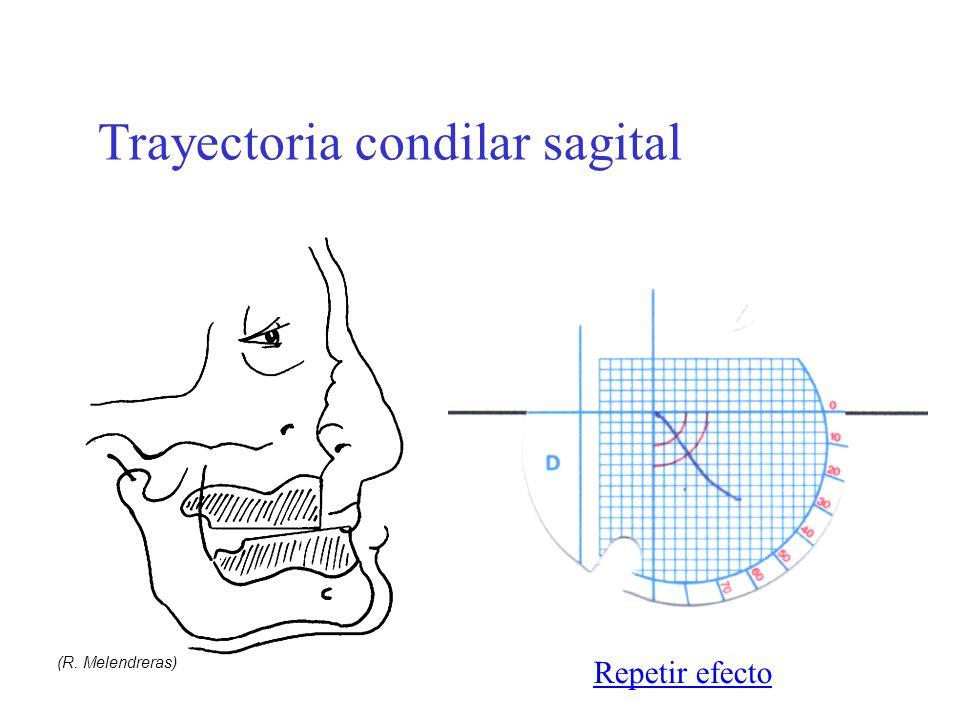 Guía y trayectoria condilar y fenómeno de Christensen (R. Melendreras) Trayectoria condilar sagital Repetir efecto