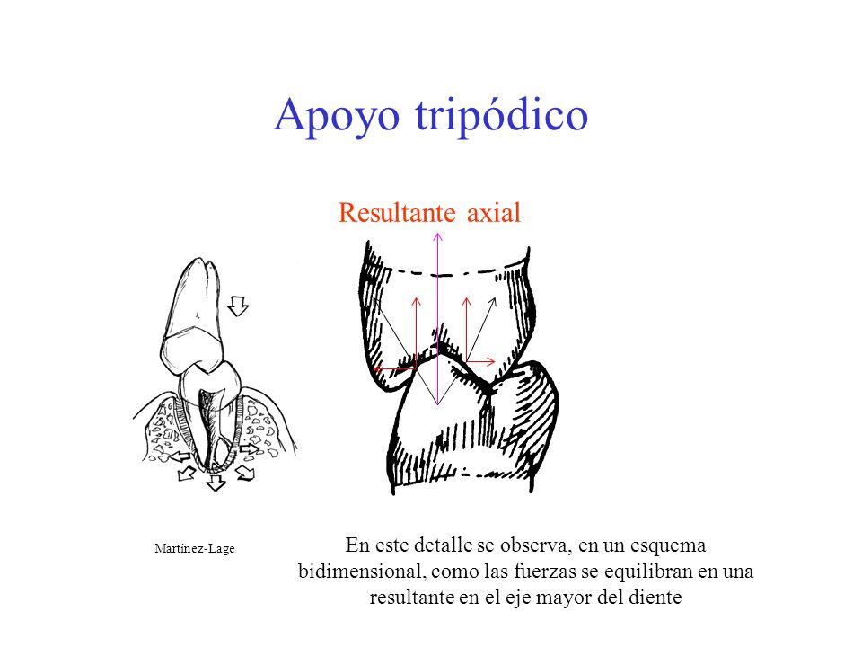 Apoyo tripódico Resultante axial En este detalle se observa, en un esquema bidimensional, como las fuerzas se equilibran en una resultante en el eje m