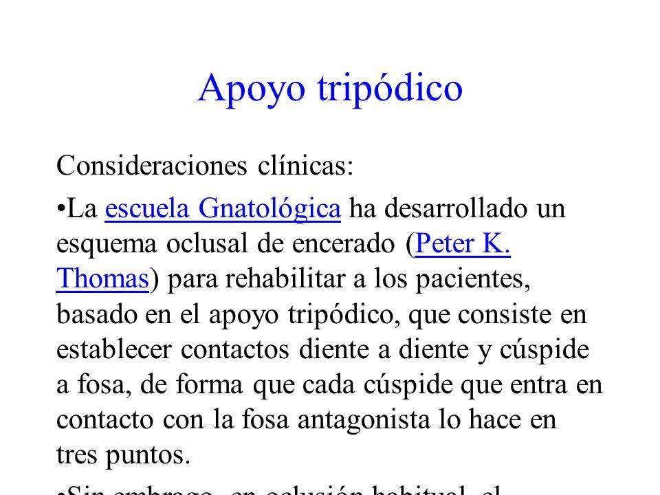 Apoyo tripódico Consideraciones clínicas: La escuela Gnatológica ha desarrollado un esquema oclusal de encerado (Peter K. Thomas) para rehabilitar a l