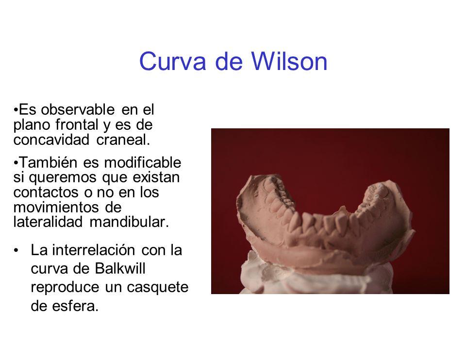 Curva de Wilson Es observable en el plano frontal y es de concavidad craneal. También es modificable si queremos que existan contactos o no en los mov