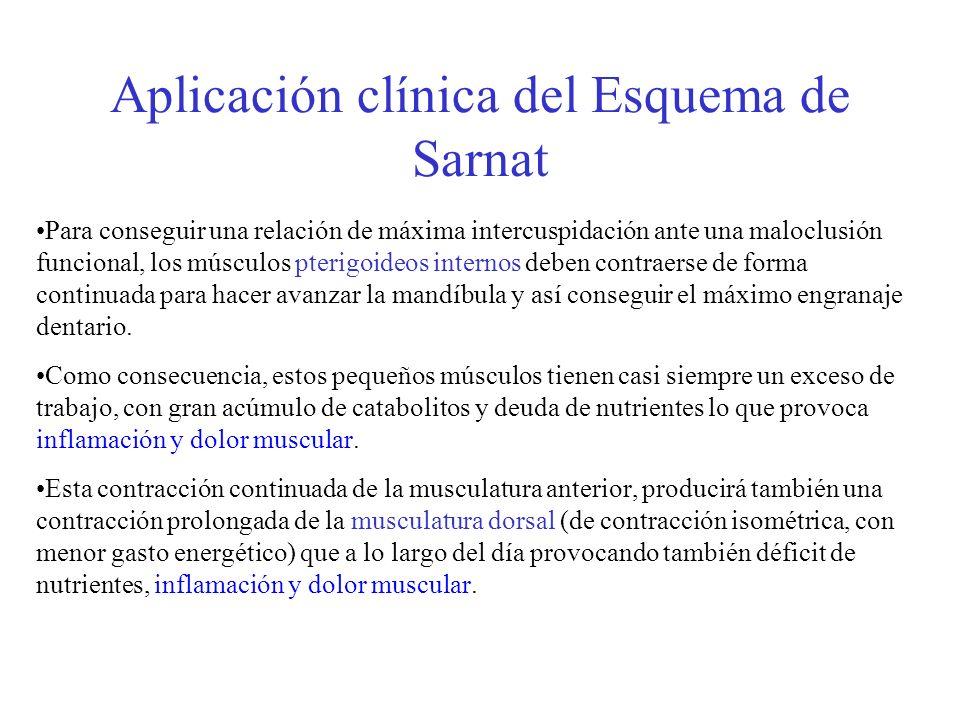 Aplicación clínica del Esquema de Sarnat Para conseguir una relación de máxima intercuspidación ante una maloclusión funcional, los músculos pterigoid