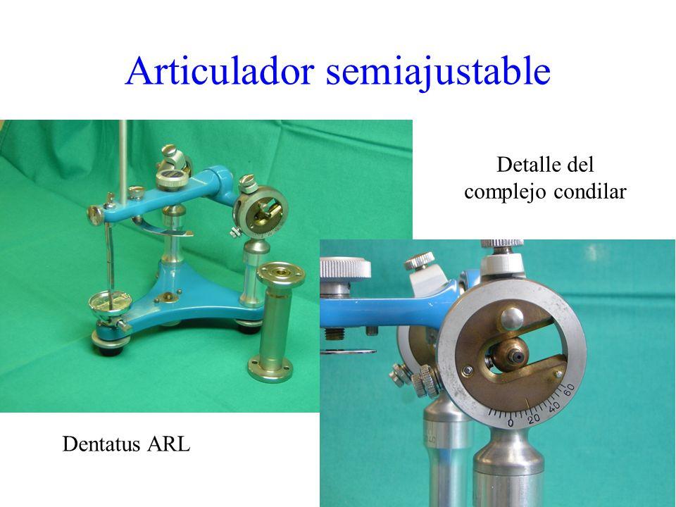 Dentatus ARL Detalle del complejo condilar Articulador semiajustable