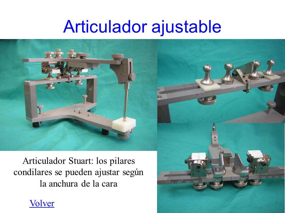 Articulador ajustable Articulador Stuart: los pilares condilares se pueden ajustar según la anchura de la cara Volver
