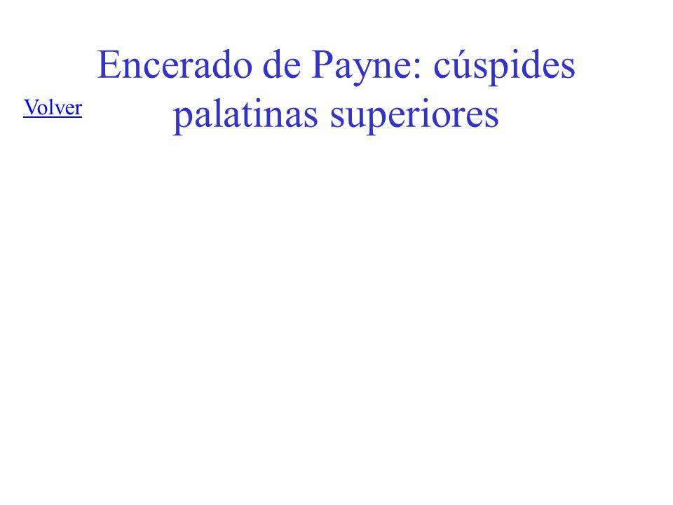 Encerado de Payne: cúspides palatinas superiores Volver