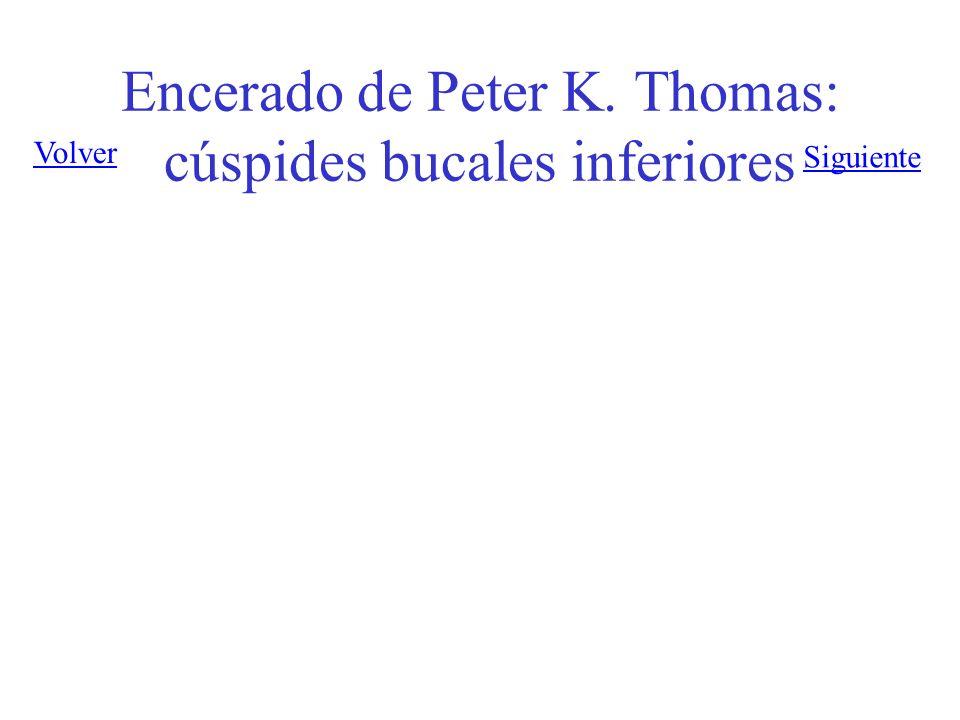 Encerado de Peter K. Thomas: cúspides bucales inferiores Siguiente Volver