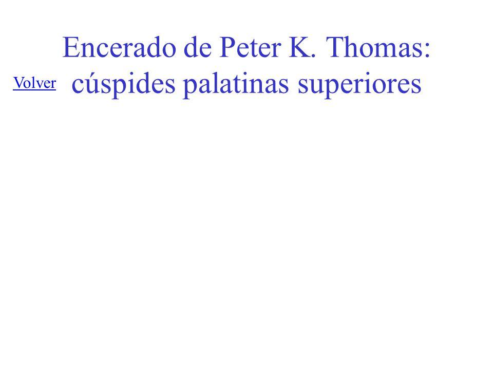 Encerado de Peter K. Thomas: cúspides palatinas superiores Volver