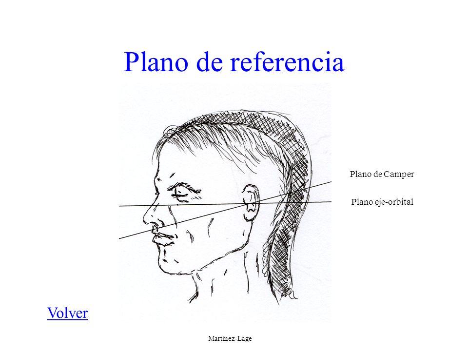 Plano de referencia Volver Plano de Camper Plano eje-orbital Martínez-Lage