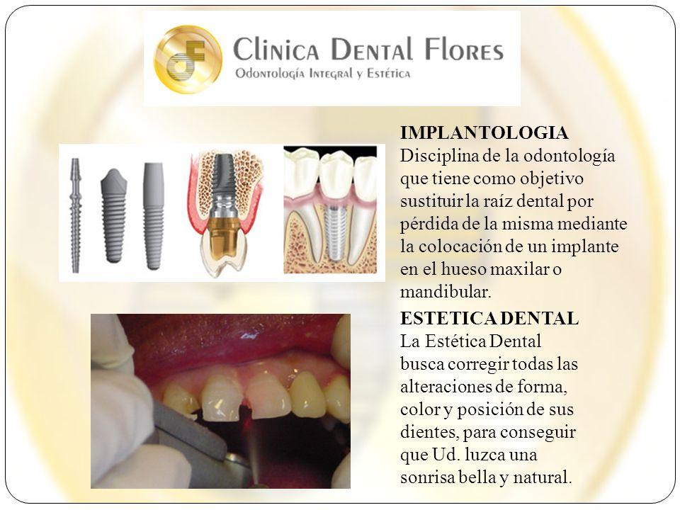 IMPLANTOLOGIA Disciplina de la odontología que tiene como objetivo sustituir la raíz dental por pérdida de la misma mediante la colocación de un impla
