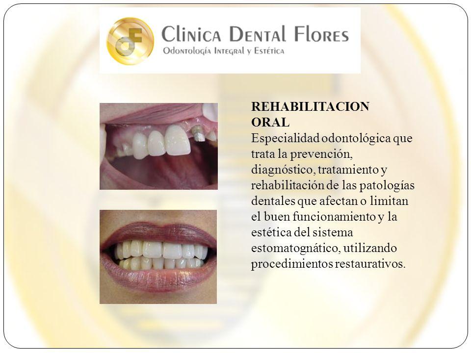 REHABILITACION ORAL Especialidad odontológica que trata la prevención, diagnóstico, tratamiento y rehabilitación de las patologías dentales que afecta