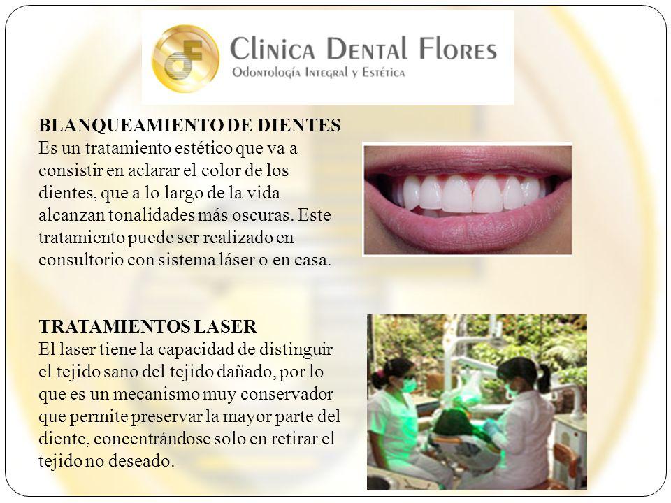 BLANQUEAMIENTO DE DIENTES Es un tratamiento estético que va a consistir en aclarar el color de los dientes, que a lo largo de la vida alcanzan tonalid