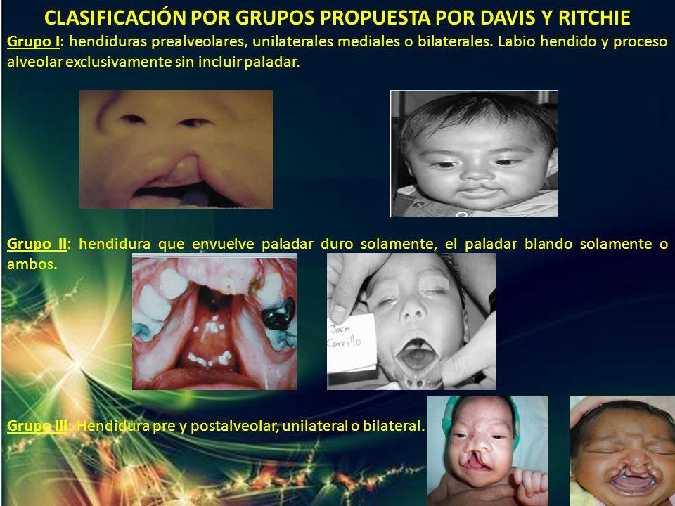 CLASIFICACIÓN POR GRUPOS PROPUESTA POR DAVIS Y RITCHIE Grupo I: hendiduras prealveolares, unilaterales mediales o bilaterales. Labio hendido y proceso