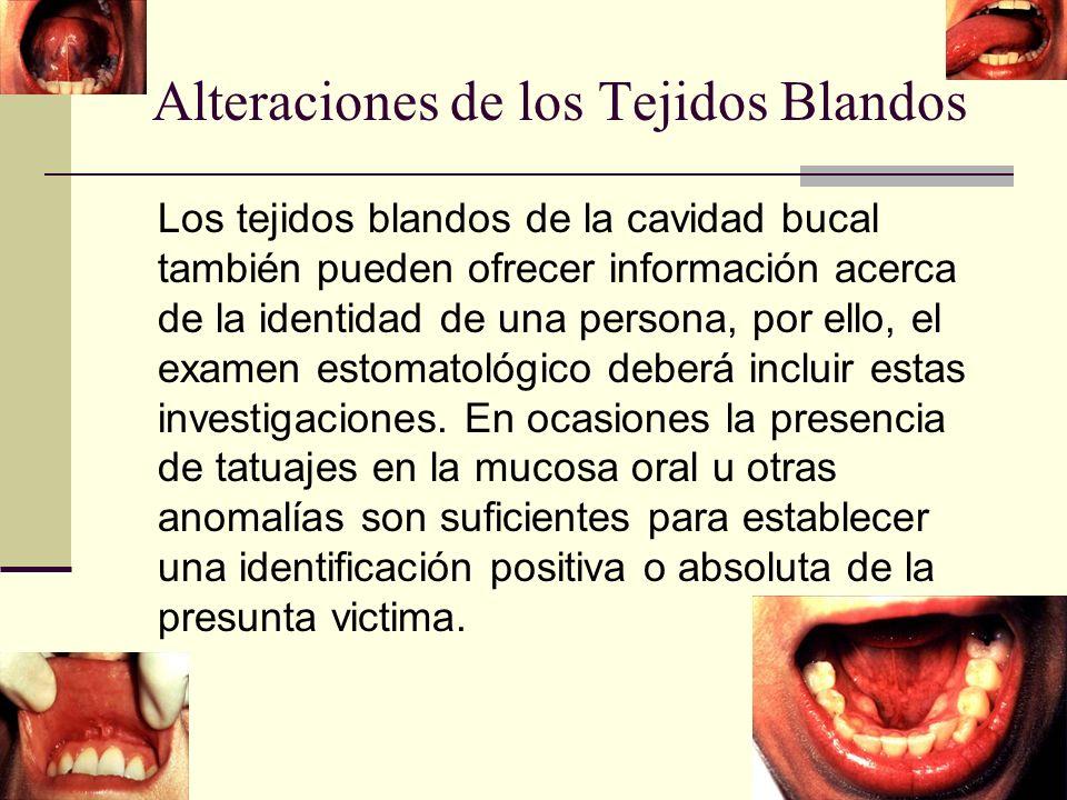 Alteraciones de los Tejidos Blandos Los tejidos blandos de la cavidad bucal también pueden ofrecer información acerca de la identidad de una persona, por ello, el examen estomatológico deberá incluir estas investigaciones.