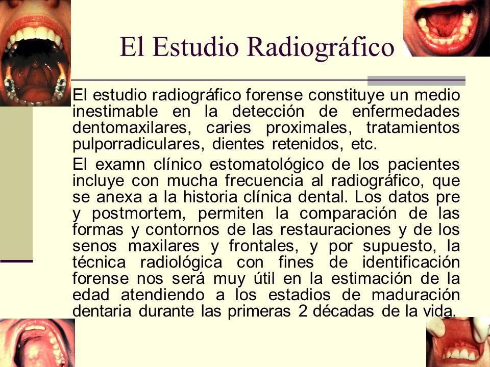 El Estudio Radiográfico El estudio radiográfico forense constituye un medio inestimable en la detección de enfermedades dentomaxilares, caries proximales, tratamientos pulporradiculares, dientes retenidos, etc.