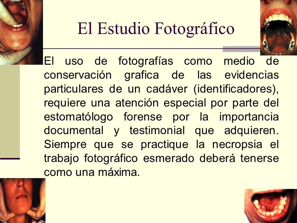 El Estudio Fotográfico El uso de fotografías como medio de conservación grafica de las evidencias particulares de un cadáver (identificadores), requiere una atención especial por parte del estomatólogo forense por la importancia documental y testimonial que adquieren.