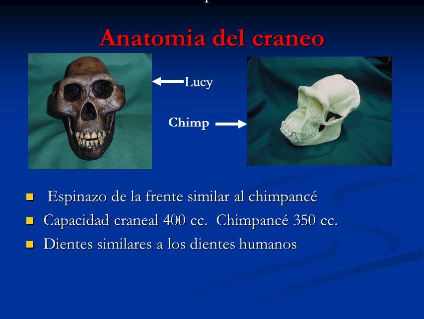 Anatomia del craneo Espinazo de la frente similar al chimpancé Capacidad craneal 400 cc. Chimpancé 350 cc. Dientes similares a los dientes humanos Chi