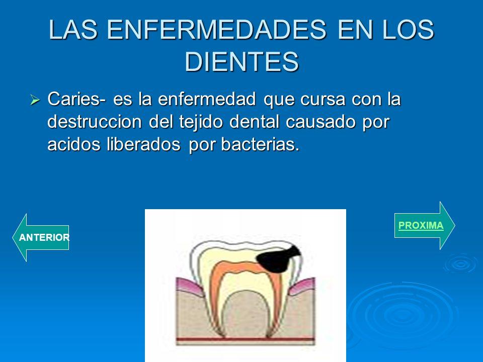 Raiz- la parte del diente que lo fija a los maxiliares. Raiz- la parte del diente que lo fija a los maxiliares. Es el tejido de la boca que recubre pa