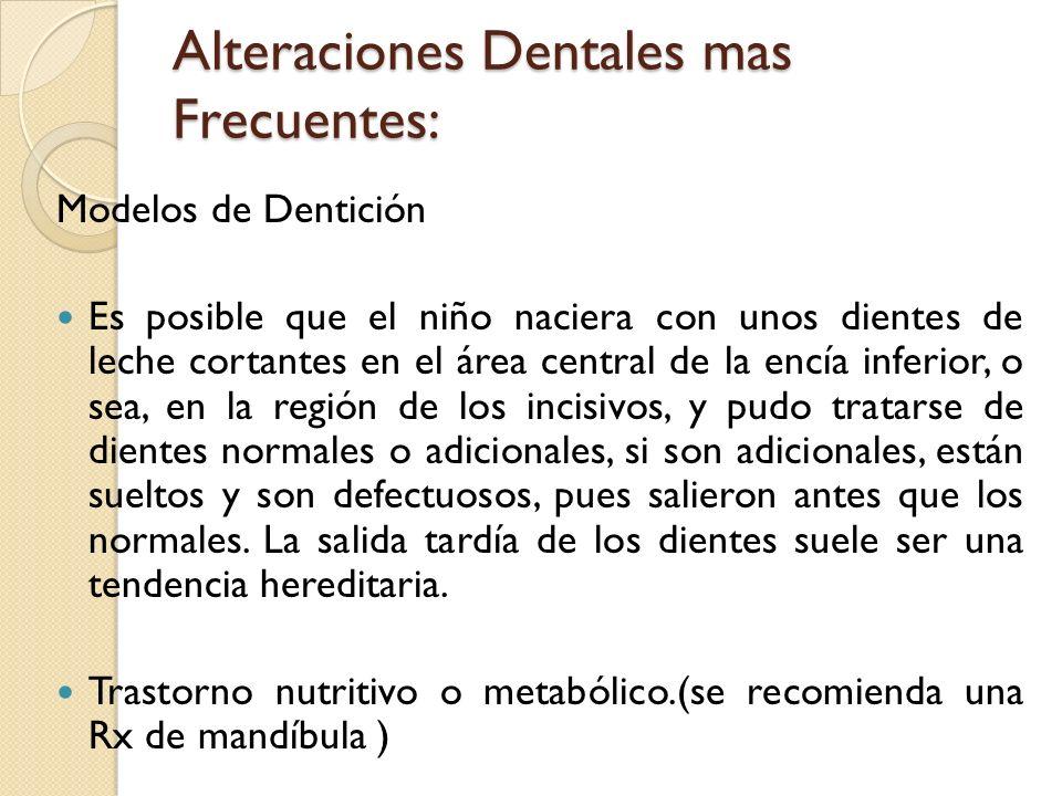 Alteraciones Dentales mas Frecuentes: Modelos de Dentición Es posible que el niño naciera con unos dientes de leche cortantes en el área central de la