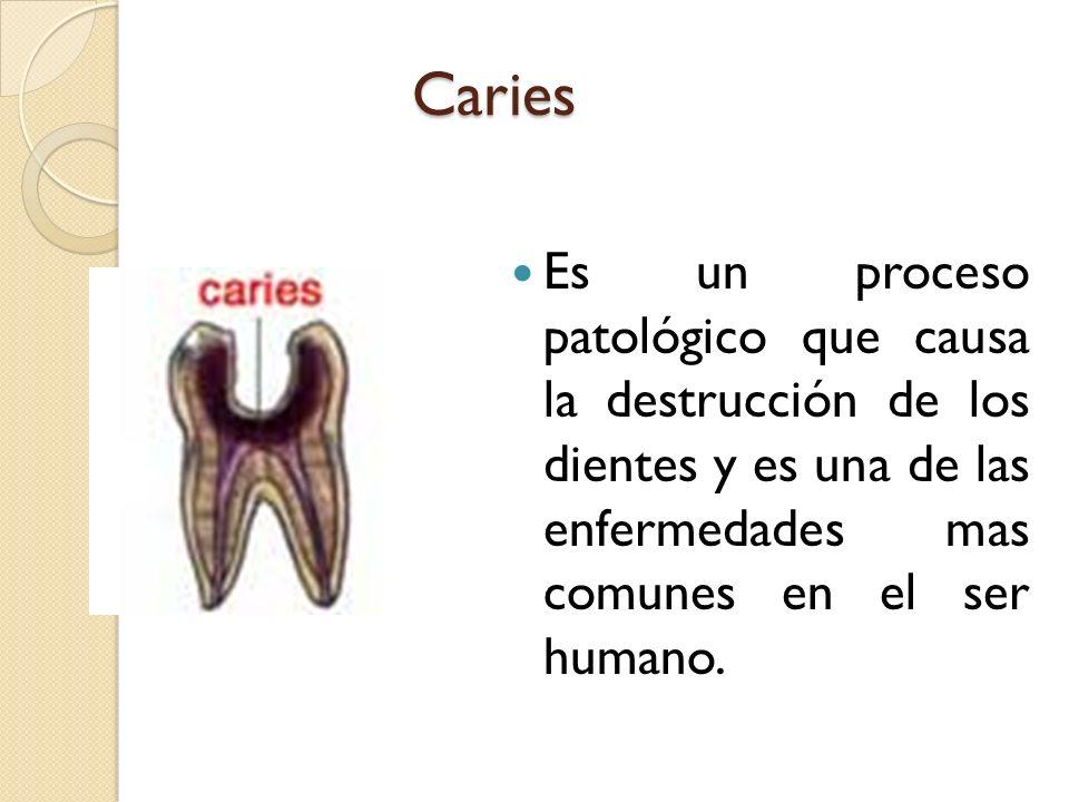 Caries Es un proceso patológico que causa la destrucción de los dientes y es una de las enfermedades mas comunes en el ser humano.