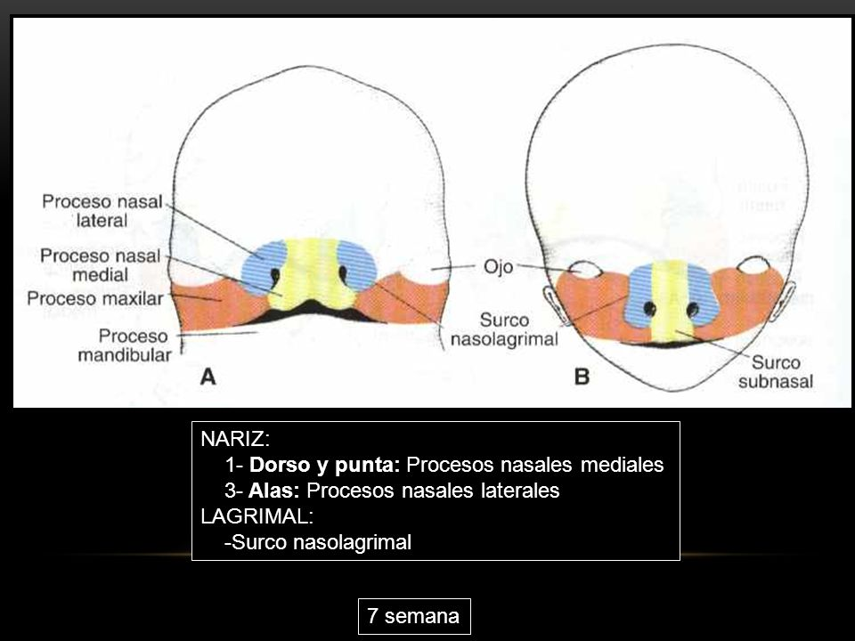 NARIZ: 1- Dorso y punta: Procesos nasales mediales 3- Alas: Procesos nasales laterales LAGRIMAL: -Surco nasolagrimal 7 semana