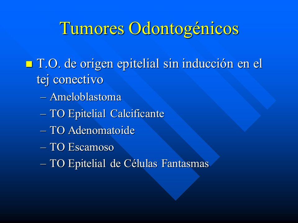 Tumores Odontogénicos T.O. de origen epitelial sin inducción en el tej conectivo T.O. de origen epitelial sin inducción en el tej conectivo –Ameloblas