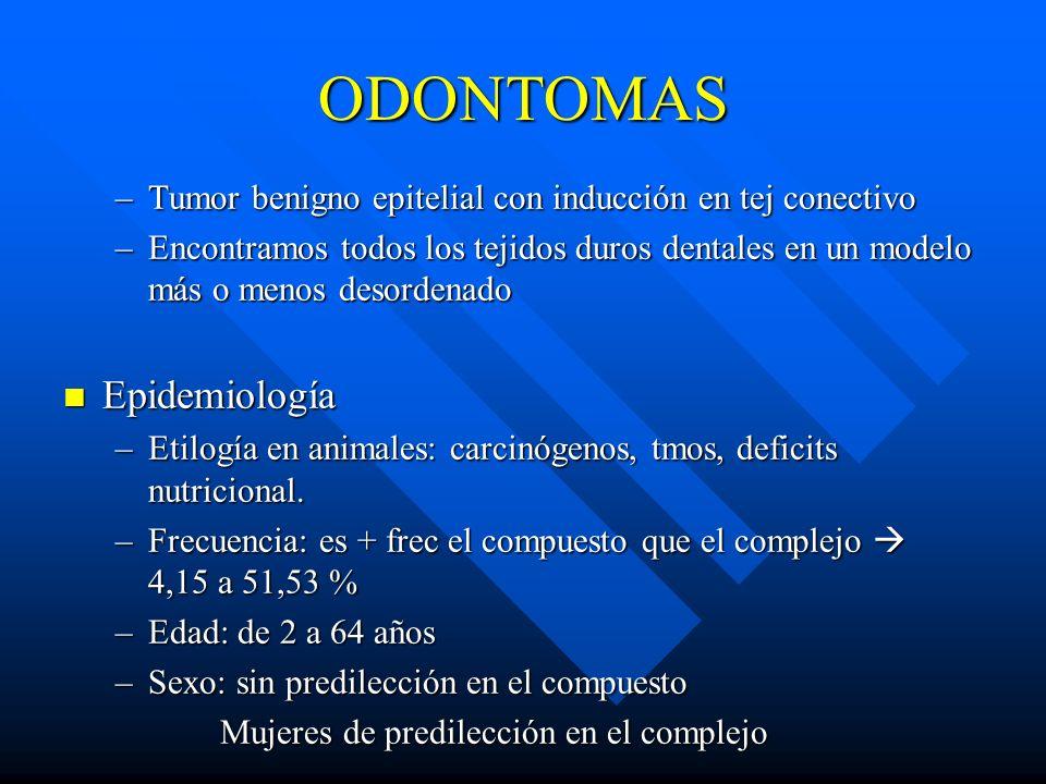 ODONTOMAS –Tumor benigno epitelial con inducción en tej conectivo –Encontramos todos los tejidos duros dentales en un modelo más o menos desordenado E