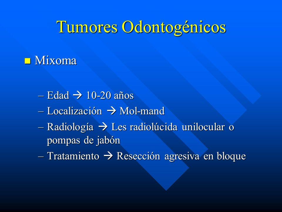 Tumores Odontogénicos Mixoma Mixoma –Edad 10-20 años –Localización Mol-mand –Radiología Les radiolúcida unilocular o pompas de jabón –Tratamiento Rese