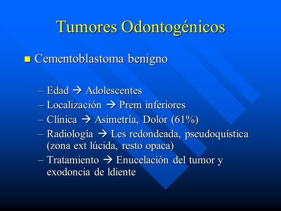Tumores Odontogénicos Cementoblastoma benigno Cementoblastoma benigno –Edad Adolescentes –Localización Prem inferiores –Clínica Asimetría, Dolor (61%)