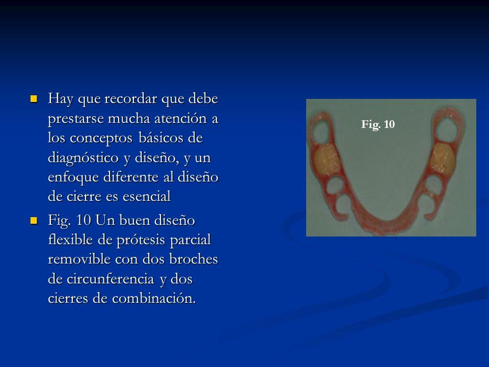 Técnica de laboratorio 1- Una vez obtenido el modelo original del profesional, observando que el mismo haya llegado al fondo del surco (como muestra la figura), se debe realizar el duplicado para luego probar la adaptación de nuestra prótesis.