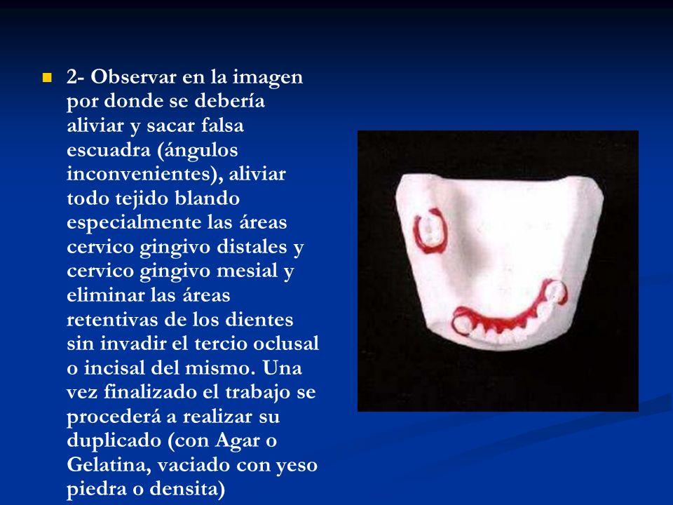 3-Realizar sobre el modelo duplicado la adaptación de la placa base con sus respectivos rodetes para enviar al profesional (que probara la adaptación en boca del paciente).