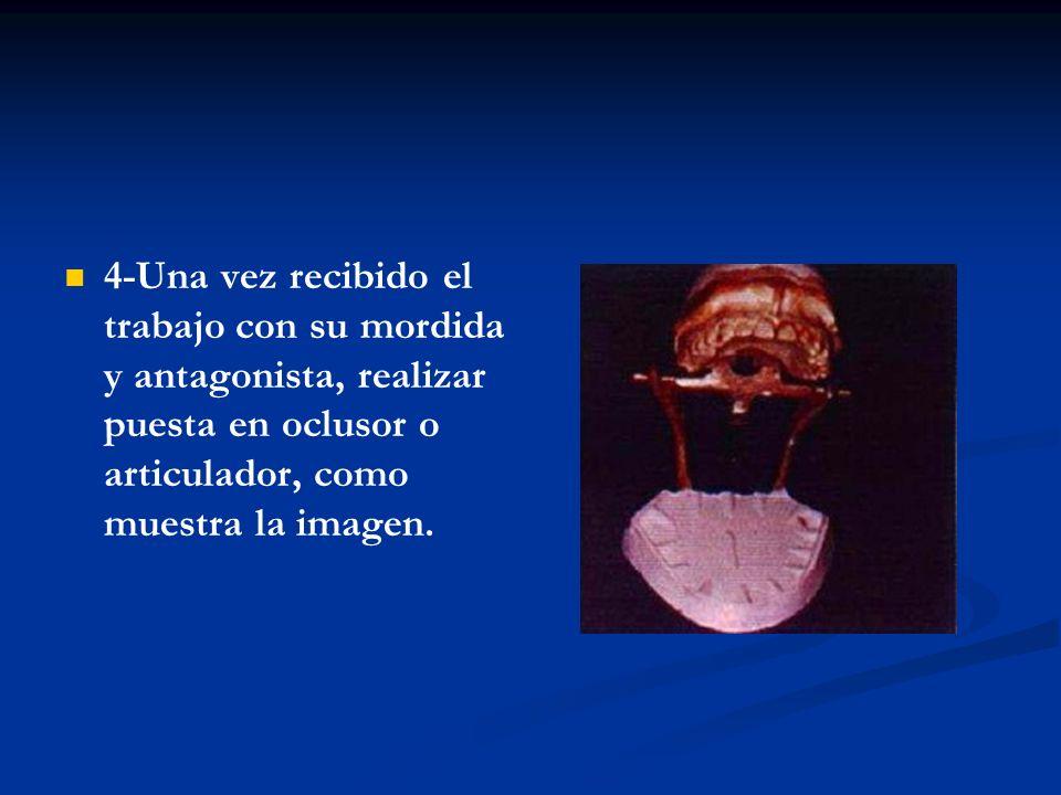 5-Tener en cuenta cuando enfilamos no desgastar demasiado el talón del diente, ya que éste necesita sus retenciones por mesial, distal y oclusal, como muestra la imagen.