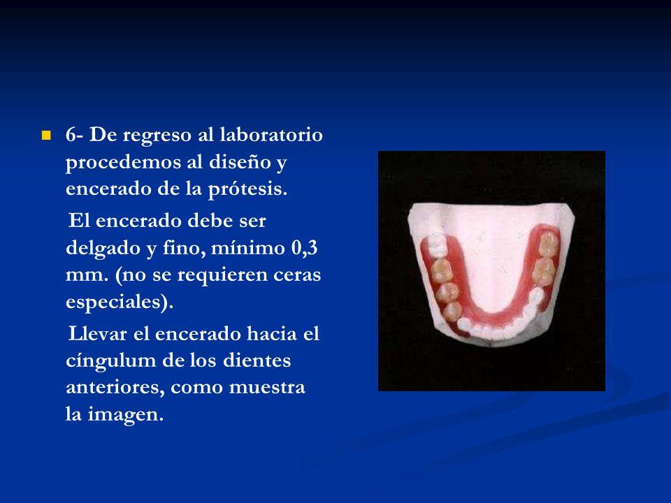 7-Por la parte vestibular del diente llevar el encerado del retenedor 2mm por arriba de la parte gingival como muestra la imagen.